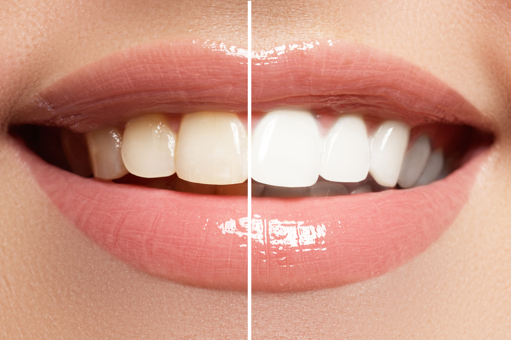 7 Questions You Should Ask Before Having Your Teeth Professionally Whitened